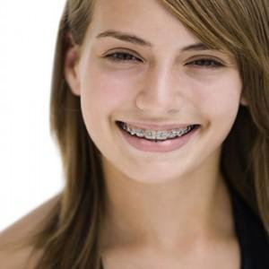 Chỉnh hình răng cho người lớn: không bao giờ quá muộn