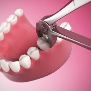 Nhổ răng tiểu phẩu