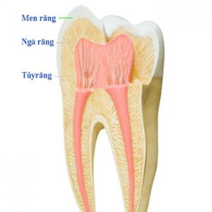 Hạn chế lấy tủy răng trong điều trị nha khoa