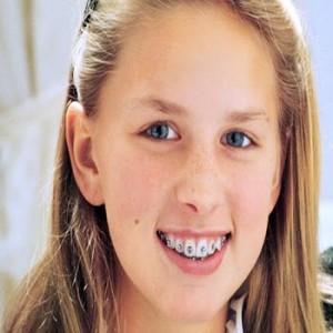 Chỉnh răng