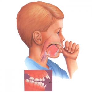 Những thói quen xấu ảnh hưởng đến răng miệng
